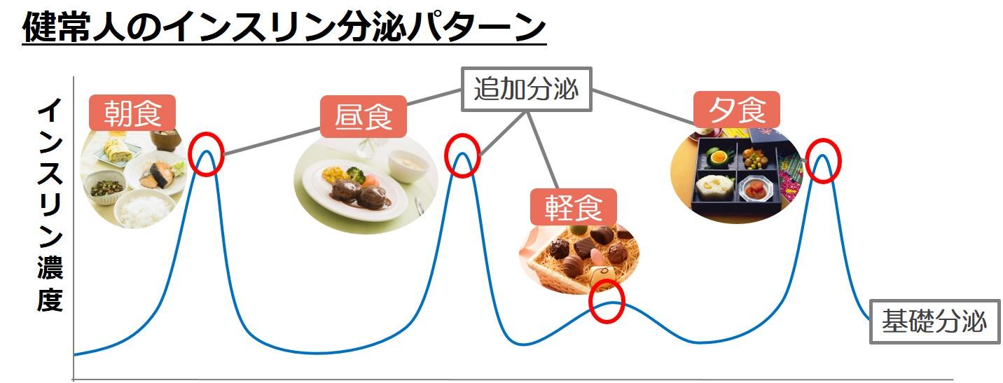 インスリン分泌パターン