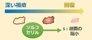 ソルコセリル作用機序