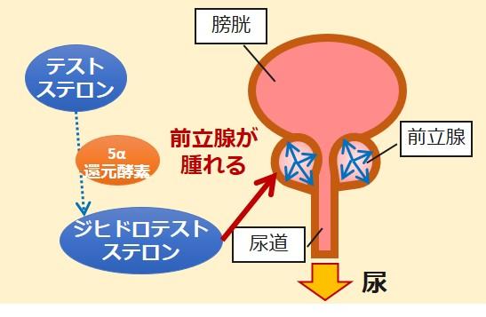 前立腺肥大ジヒドロテストステロン
