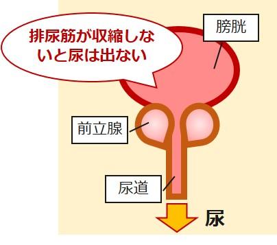 排尿筋排尿障害