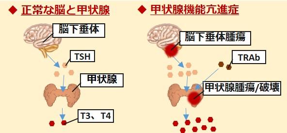 甲状腺機能亢進症原因