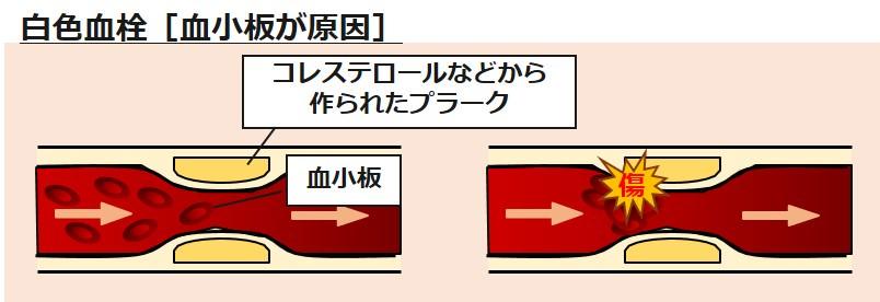 白色血栓血小板