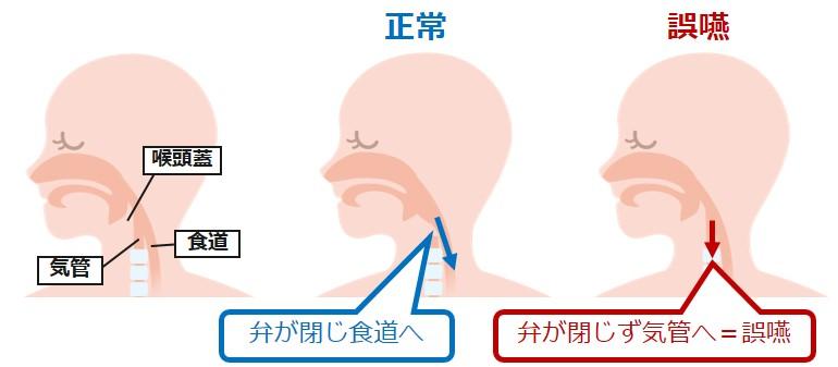 誤嚥むせ気管仕組み