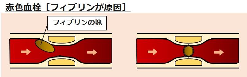 赤色血栓フィブリン