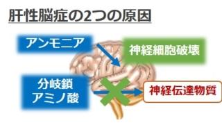 肝性脳症原因